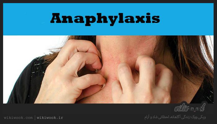 آنافیلاکسی چیست؟ / ویکی ووک