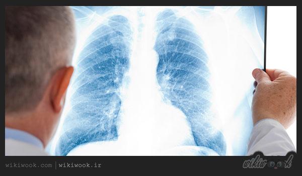 بیماری آزبستور چیست؟ / ویکی ووک