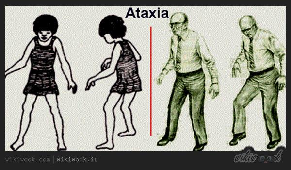بیماری آتاکسی چیست؟ / ویکی ووک