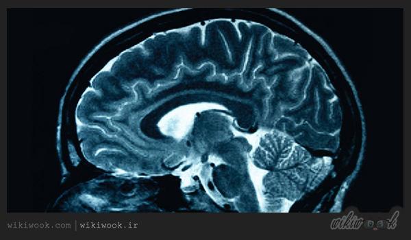 آبسه مغزی چیست؟ / ویکی ووک