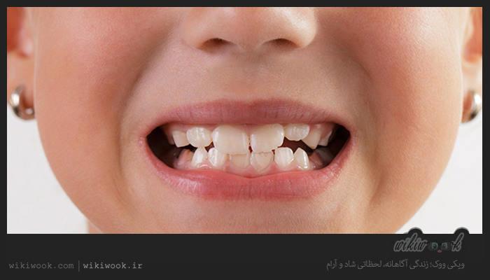 دندان قروچه در خواب چه عوارضی دارد؟ / ویکی ووک