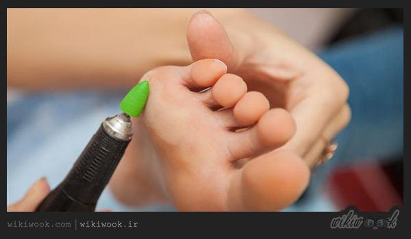 چگونه میخچه را درمان کنیم؟ / ویکی ووک