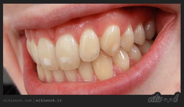چگونه لکه های سفید روی دندان را از بین ببریم؟ / ویکی ووک