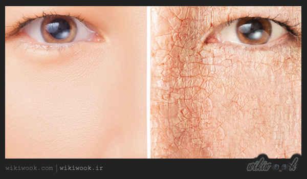 درمان خشکی پوست چگونه است؟ / ویکی ووک