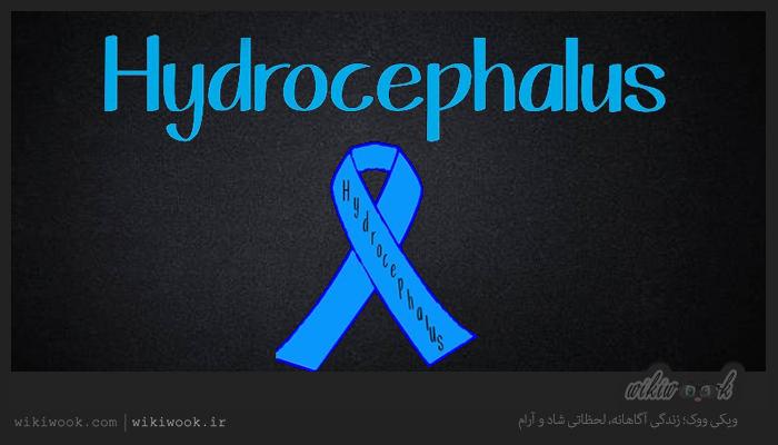 بیماری هیدروسفالی چیست؟ / ویکی ووک