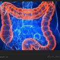 چگونه با سندرم روده تحریک پذیر مقابله کنیم؟ / ویکی ووک