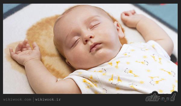 یرقان در نوزادان را چگونه درمان کنیم؟ / ویکی ووک