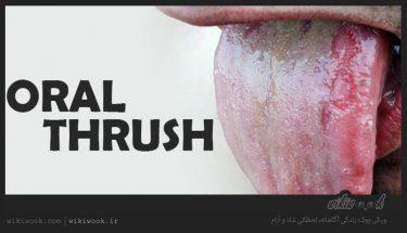 بیماری برفک دهان چیست؟ / ویکی ووک
