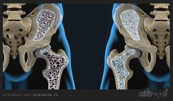 علت پوکی استخوان چیست؟ / ویکی ووک
