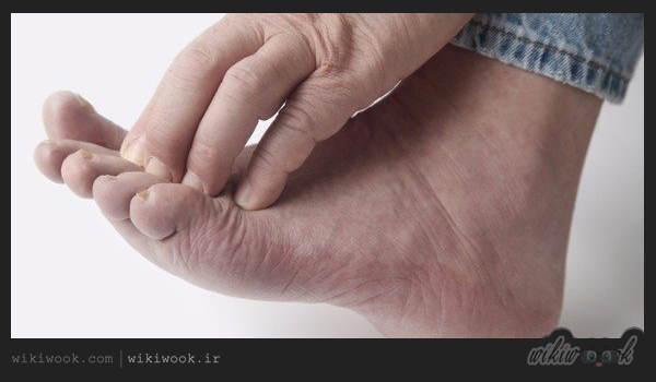 بیماری نوروپاتی چیست؟ / ویکی ووک