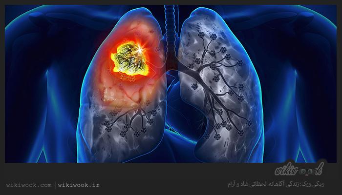 چگونه عفونت ریه را درمان کنیم؟ / ویکی ووک