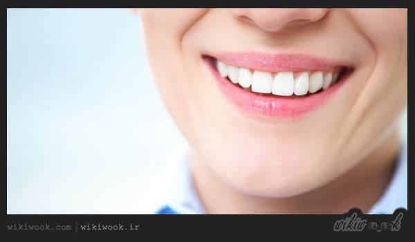 مراقبت از دندان ها چه اصولی دارد؟ / ویکی ووک