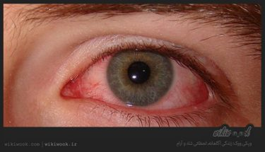 لکه های خونی چشم نشانه چیست؟ / ویکی ووک