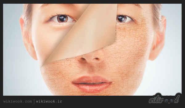 دلایل خشکی پوست در فصل تابستان چیست؟ / ویکی ووک