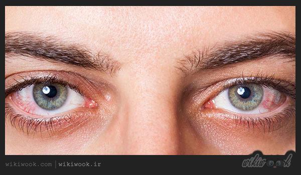 خشکی چشم چیست؟ / ویکی ووک