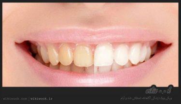 دندانها