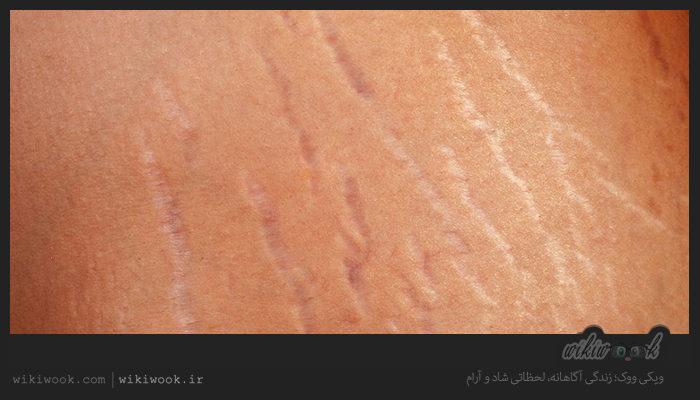 ترک های پوست