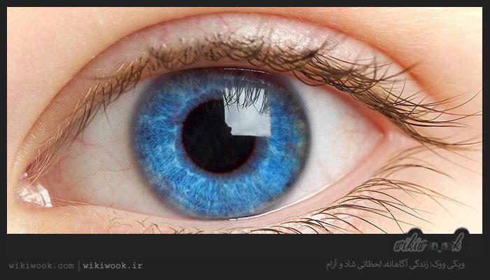سرطان چشم چیست؟ / ویکی ووک