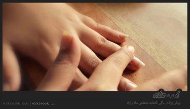 چگونه بیماری انگشت ماشه ای را درمان کنیم؟ / ویکی ووک