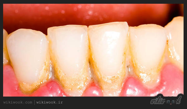 فلوروزیس دندانی چیست؟ / ویکی ووک