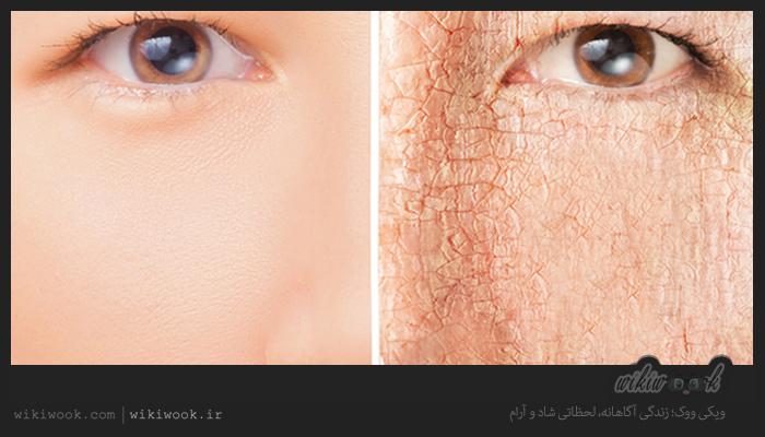 خشکی پوست صورت در سرما را چگونه درمان کنیم؟ / ویکی ووک