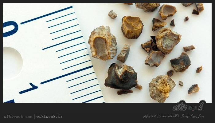 کدام مواد غذایی باعث سنگ کلیه میشود؟ / ویکی ووک
