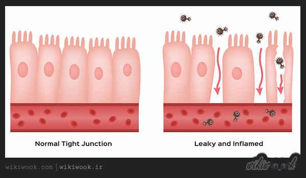 سندرم روده چکه کن چیست و چه علائمی دارد؟ - ویکی ووک