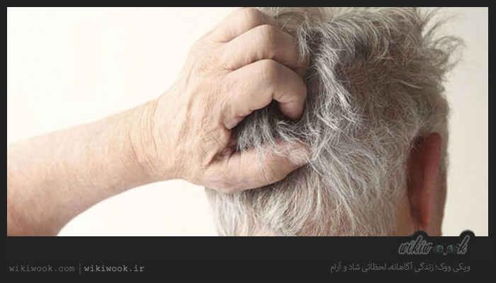 چگونه جوش های کف سر را درمان کنیم؟ / ویکی ووک