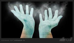دست و پای سرد