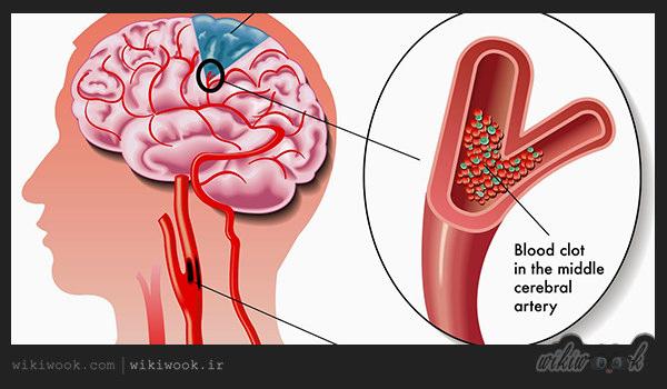 سکته مغزی چیست؟ / ویکی ووک
