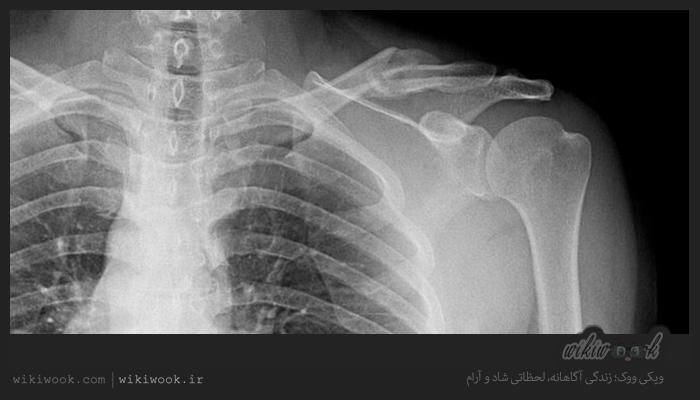 بعد از جراحی در شکستگیها چه مراقبت هایی لازم است؟ / ویکی ووک