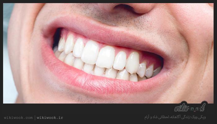 سفید کننده های طبیعی دندان