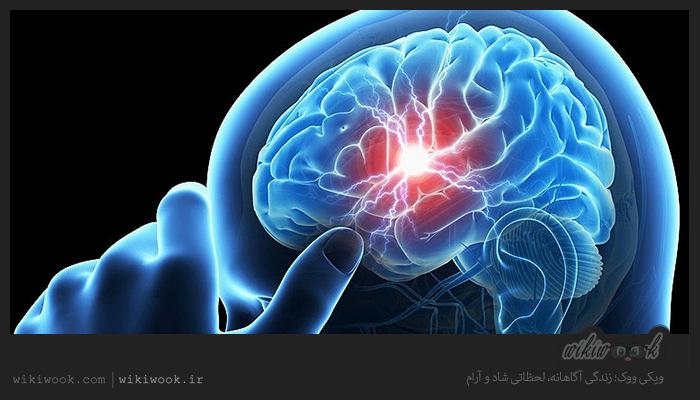 سلامت مغز
