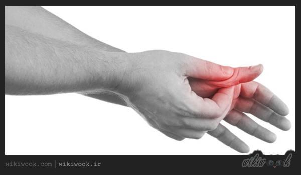 بیماری انگشت ماشه ای چیست؟ / ویکی ووک