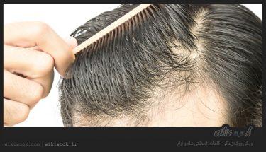 بهترین شوینده های گیاهی موی سر کدامند؟ / ویکی ووک
