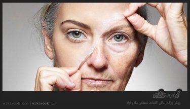 چگونه چین های صورت را از بین ببریم؟ / ویکی ووک